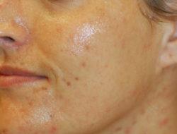 nationaal huidcentrum-chemische peeling-voor